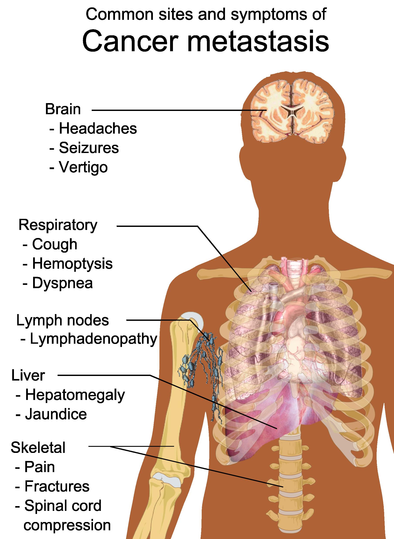 Cancer monterey bay holistic. Headache clipart brain tumor