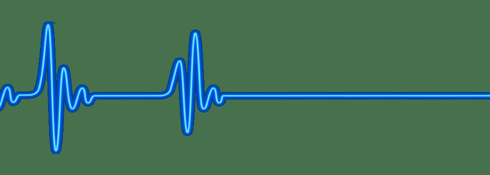 Heartbeat clipart blue. Stbiomedical com venta de