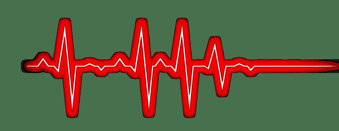 Ekj the palm beach. Heartbeat clipart heart monitor line