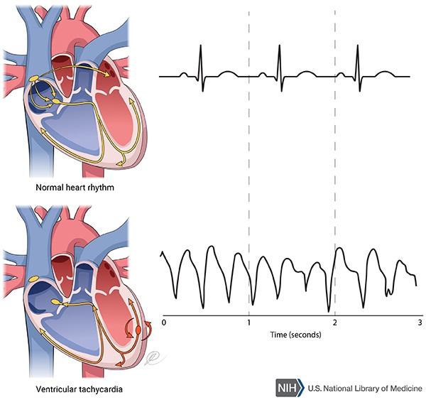 Catecholaminergic polymorphic ventricular . Heartbeat clipart tachycardia