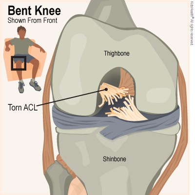 Hurt clipart acl injury. Anterior cruciate ligament tears