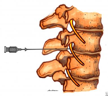 Therapeutic injections for management. Hurt clipart acute pain