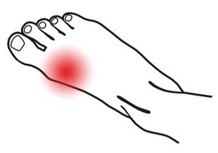 Hurt clipart big toe. Hallux limitus joint arthritis