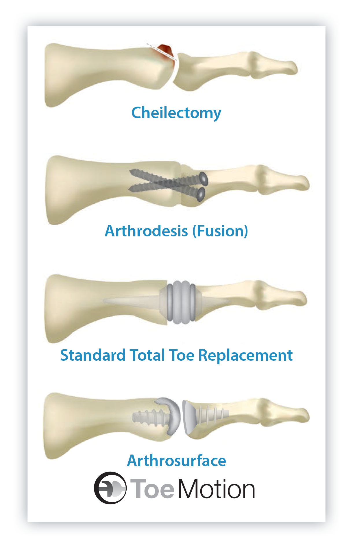 Fusion foot surgery pinterest. Hurt clipart big toe
