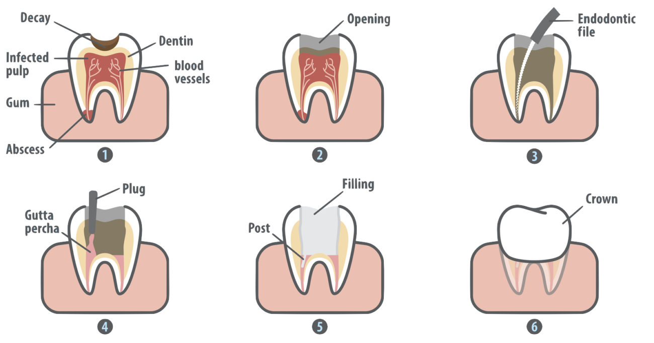 Hurt clipart dental pain. Treatment for root canal