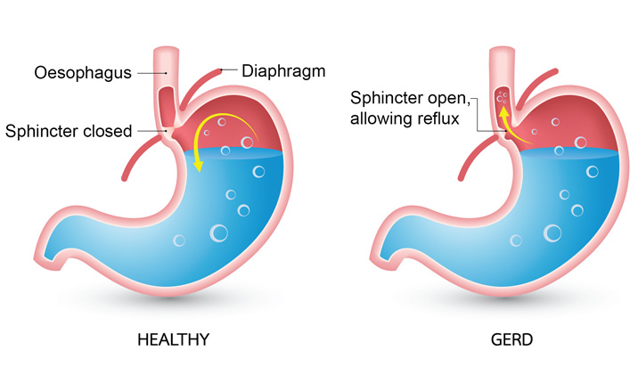 Can gastric problems cause. Hurt clipart digestive problem