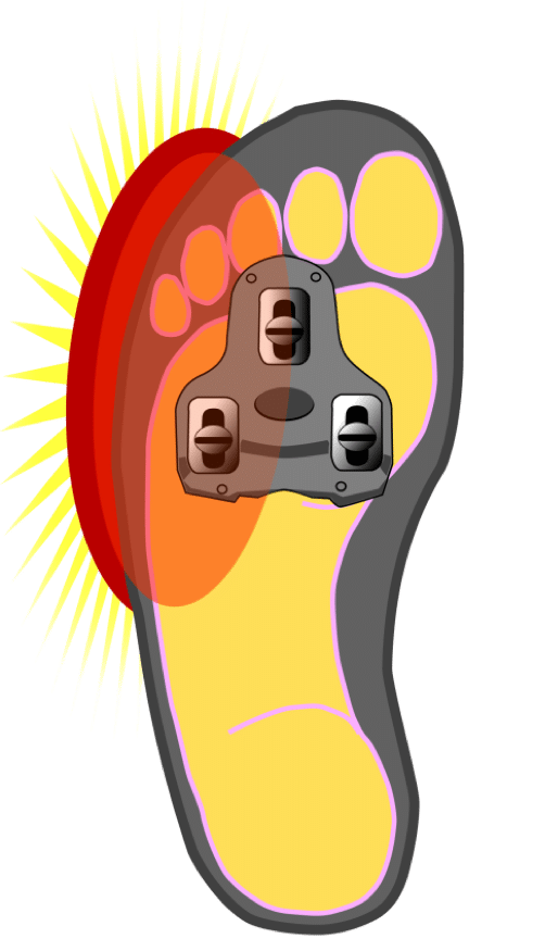 Why do i have. Hurt clipart foot pain