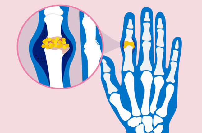 Can you get gout. Hurt clipart hand pain