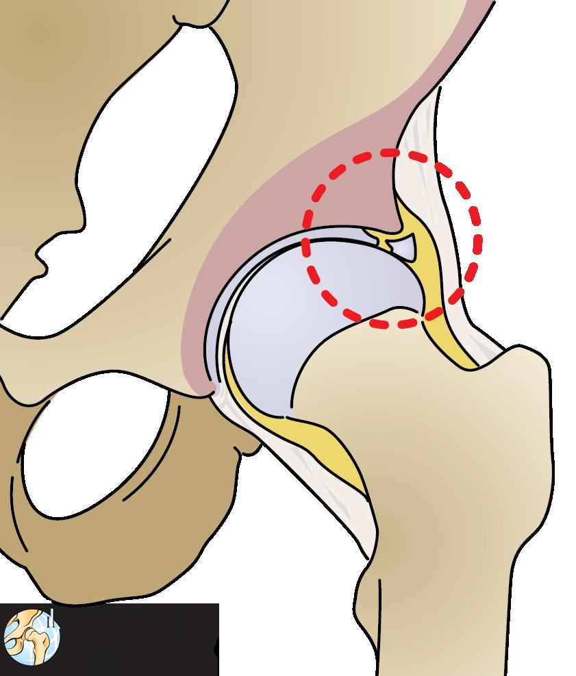 Hurt clipart hip pain. Torn labrum international dysplasia