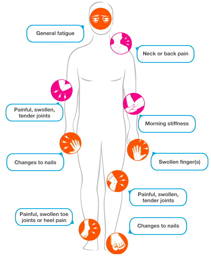 Symptoms of psa psoriatic. Hurt clipart joint pain