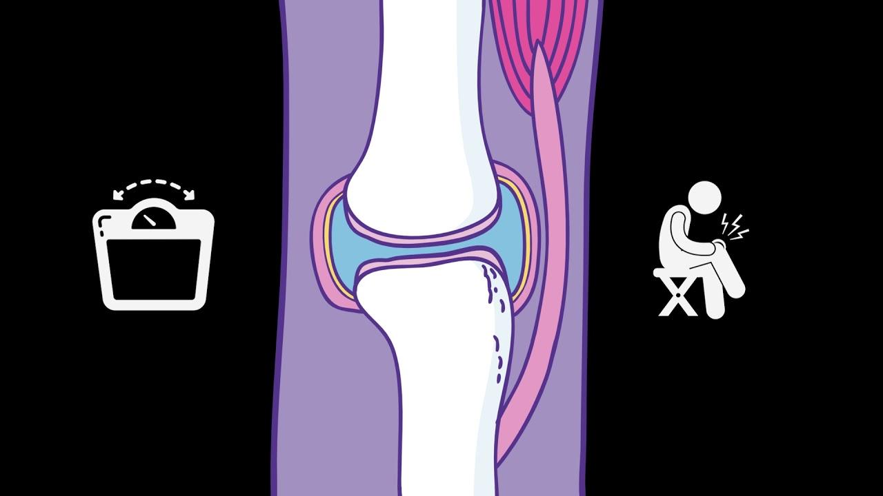 Hurt clipart osteoarthritis. Oa causes symptoms treatments