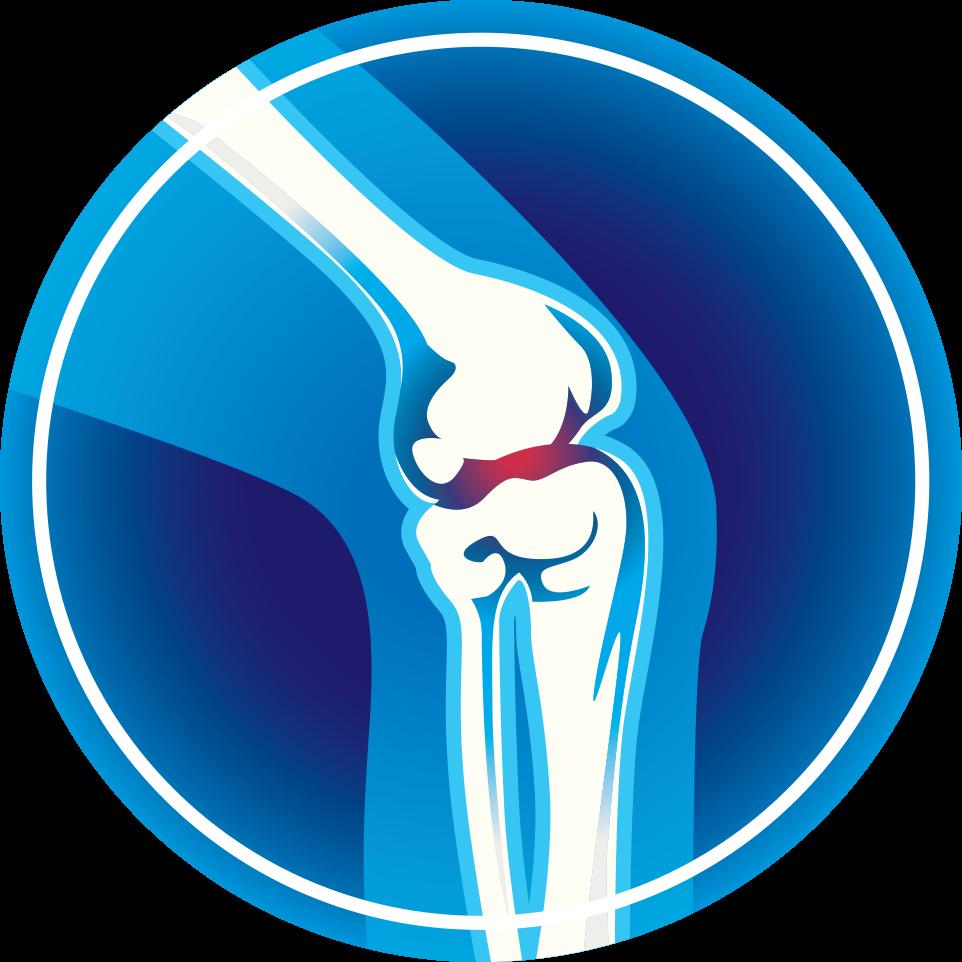 Arthritis monroe clinic did. Injury clipart bad knee