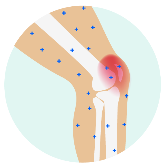 Hurt clipart pain relief. Learn why topical joint