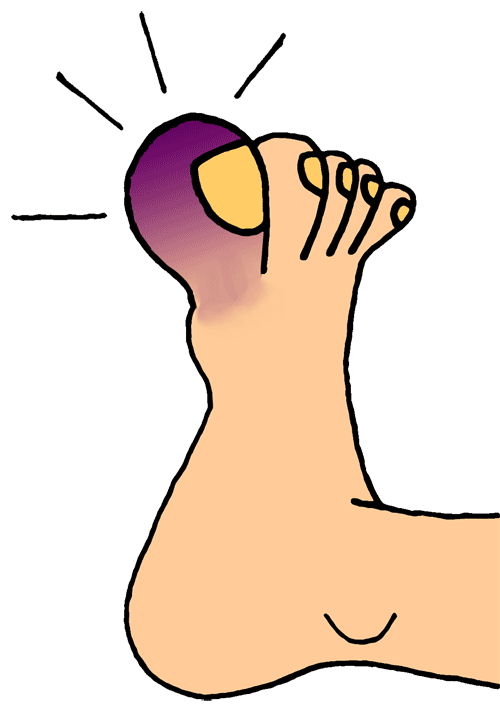 Hurt clipart stubbed toe. Random crap no one