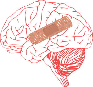 Brain clip art at. Injury clipart
