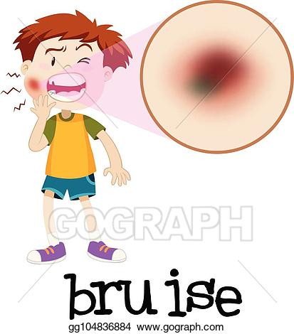 Vector illustration magnified boy. Pain clipart bruised
