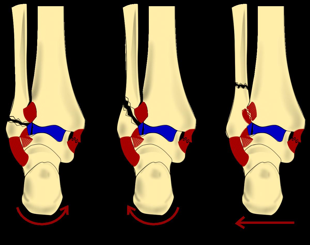 Danis weber classification wikipedia. Xray clipart xray broken bone