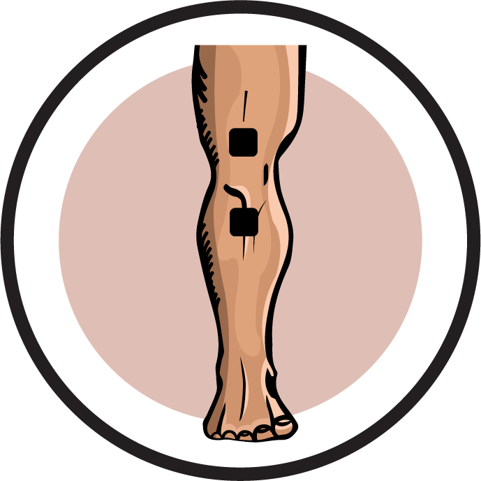 Ireliev electrode pad placement. Injury clipart knee replacement