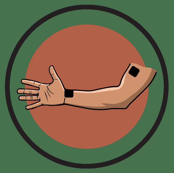 Neck clipart finger pain. Ireliev ulnar nerve lesion