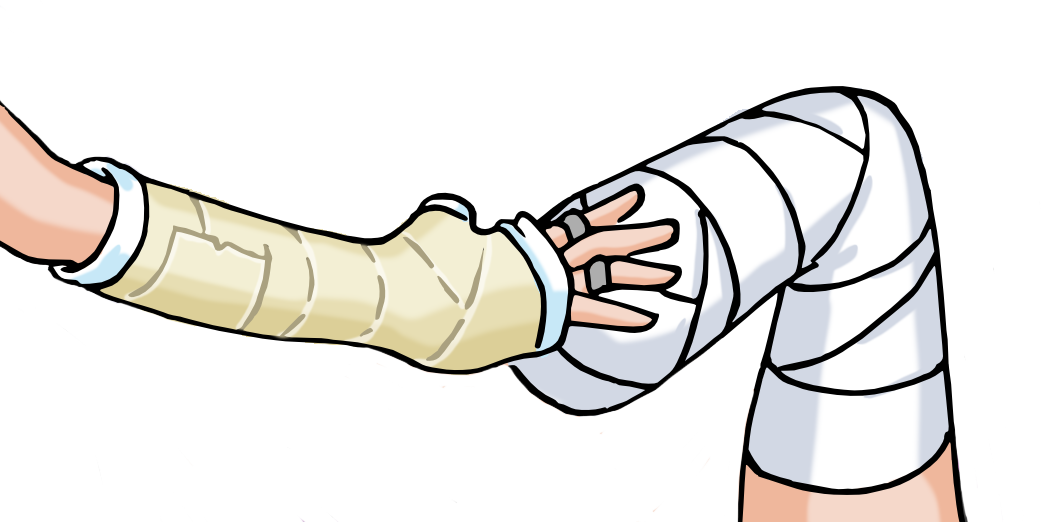 Still twins by excilion. Injury clipart plaster cast