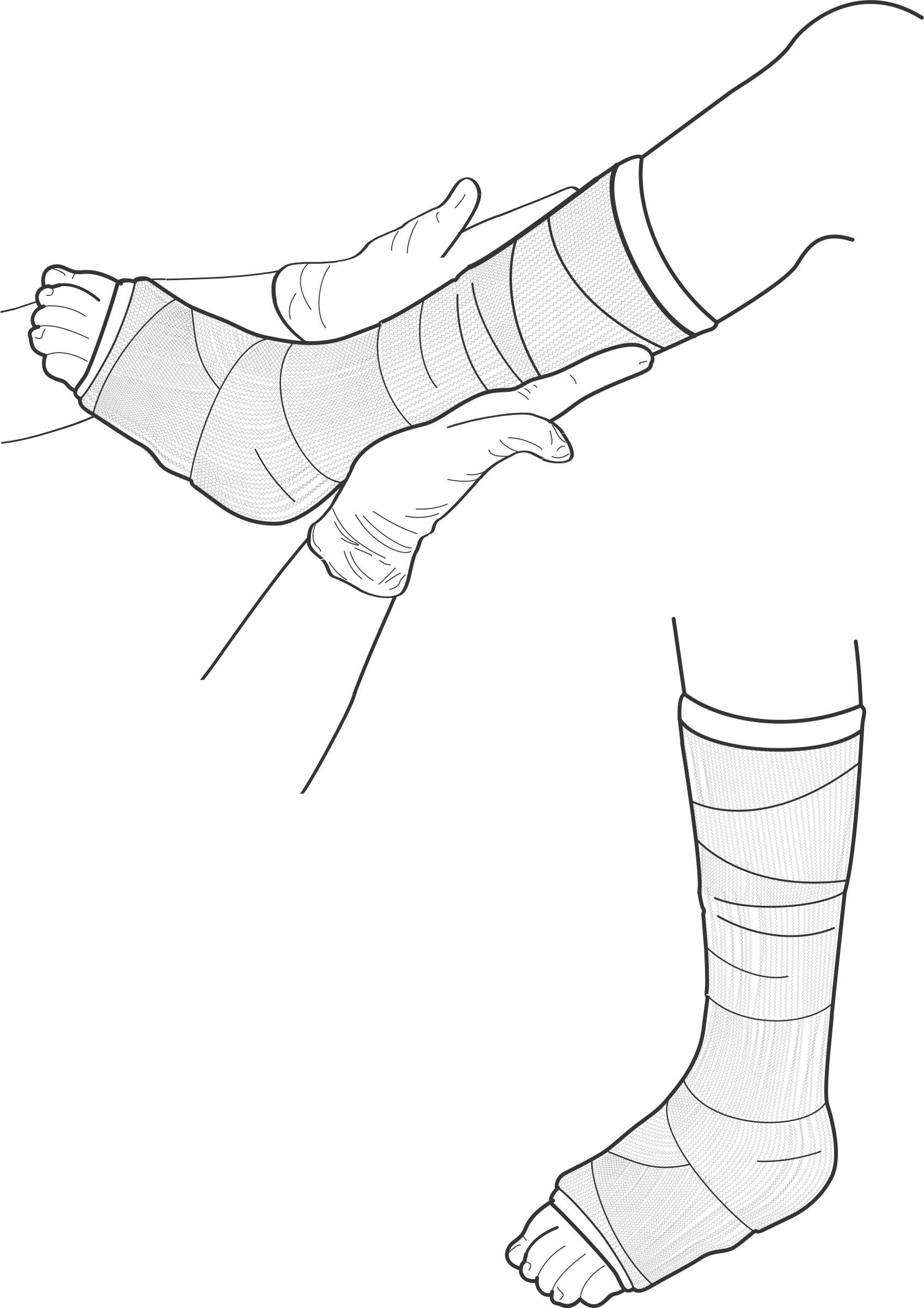 Injury clipart plaster cast. Leg drawing at getdrawings