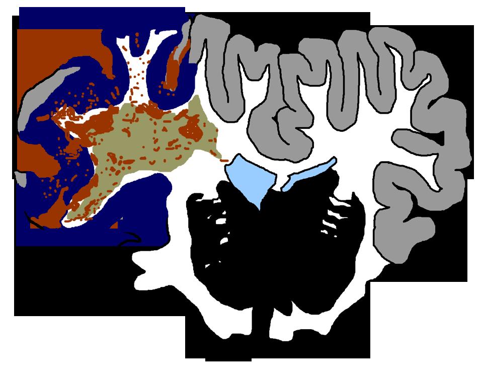 Injury clipart tbi. Traumatic brain cosbid co
