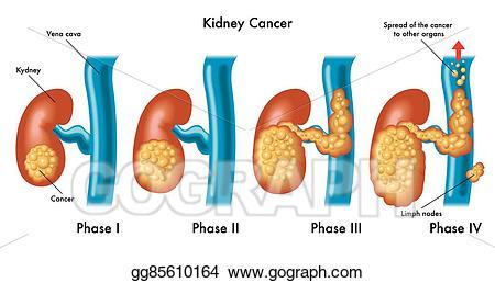 Kidney clipart kidney cancer. Vector illustration