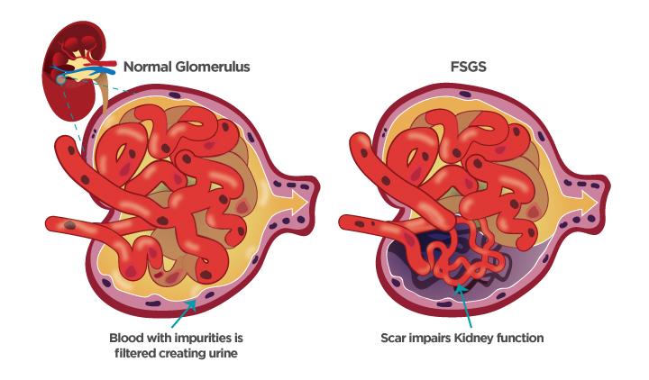 Focal segmental glomerulosclerosis fsgs. Kidney clipart nephrotic syndrome