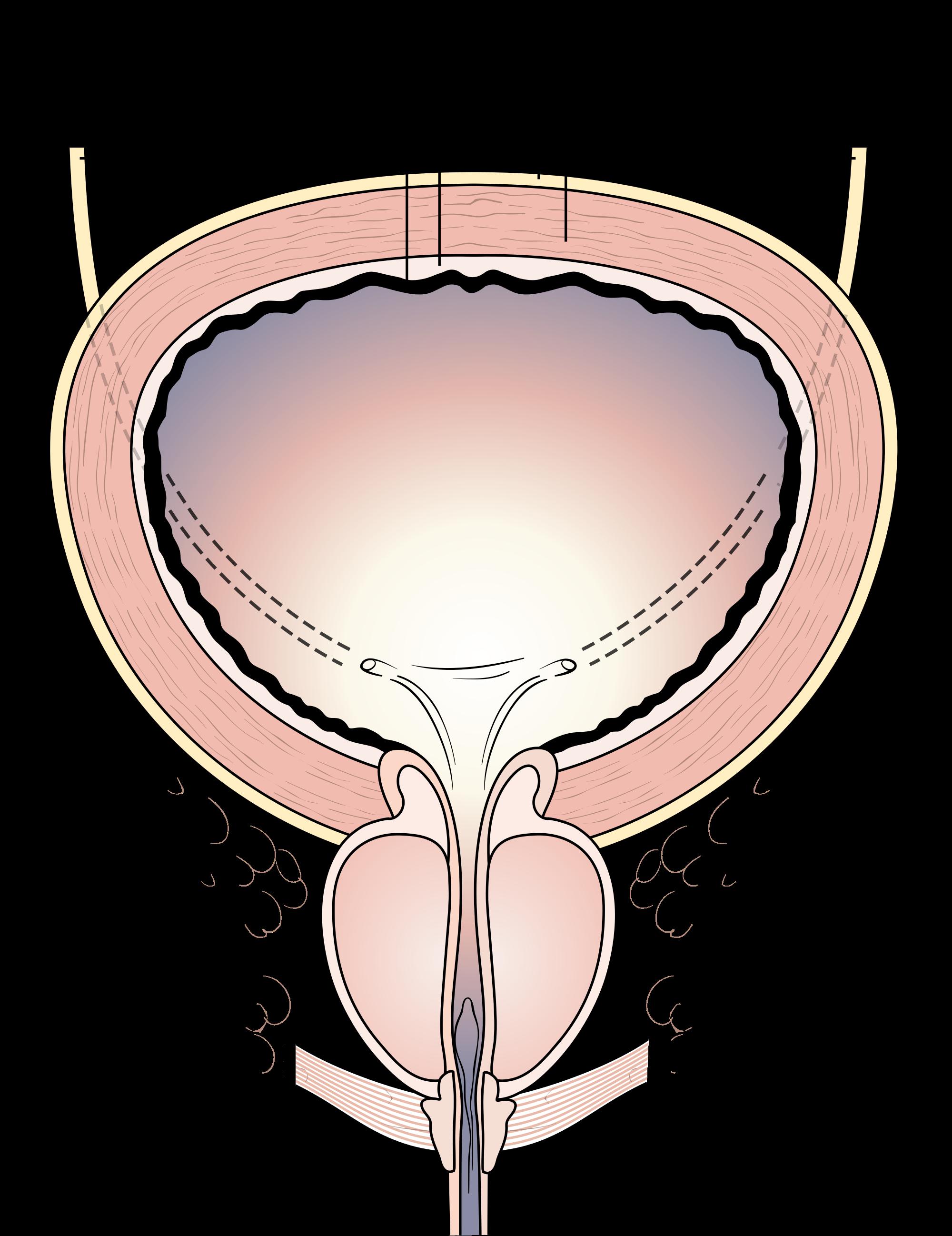 Kidney clipart ureter. Bladder pain shy urinating