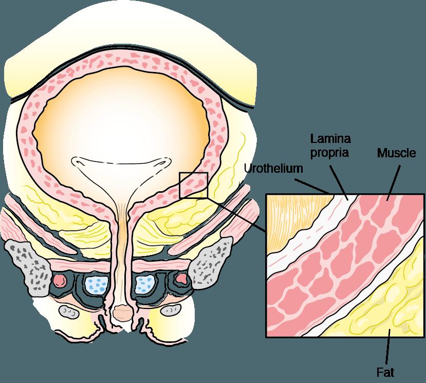 What is bladder cancer. Kidney clipart ureter