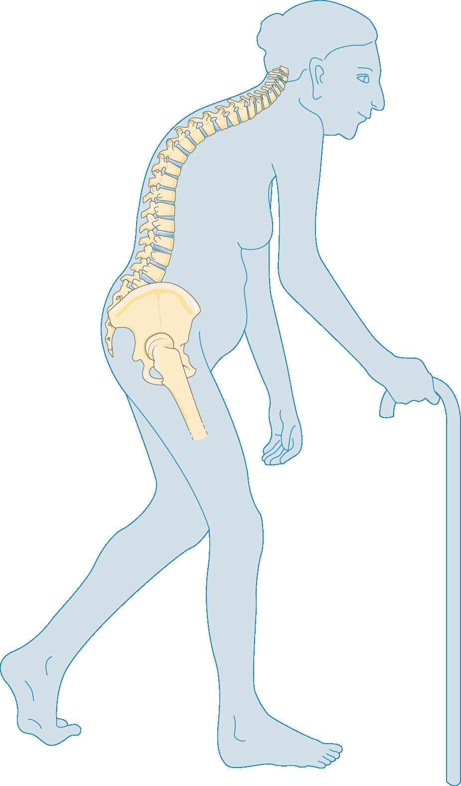 Leg clipart leg fracture, Leg leg fracture Transparent FREE