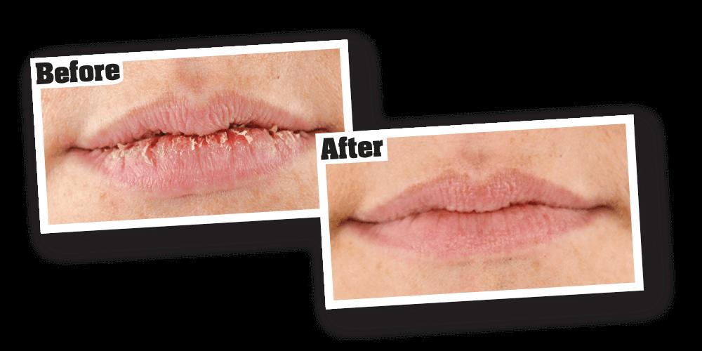 Repair balm o keeffe. Lipstick clipart chapped lip