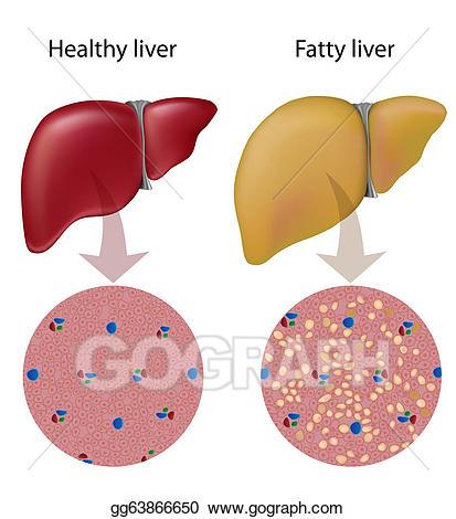 Liver clipart fatty liver. Vector stock disease eps