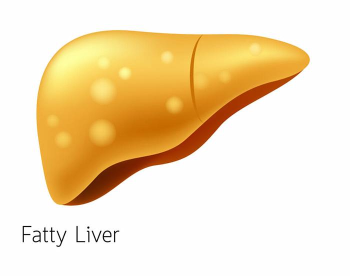 By dr gerald bertiger. Liver clipart fatty liver