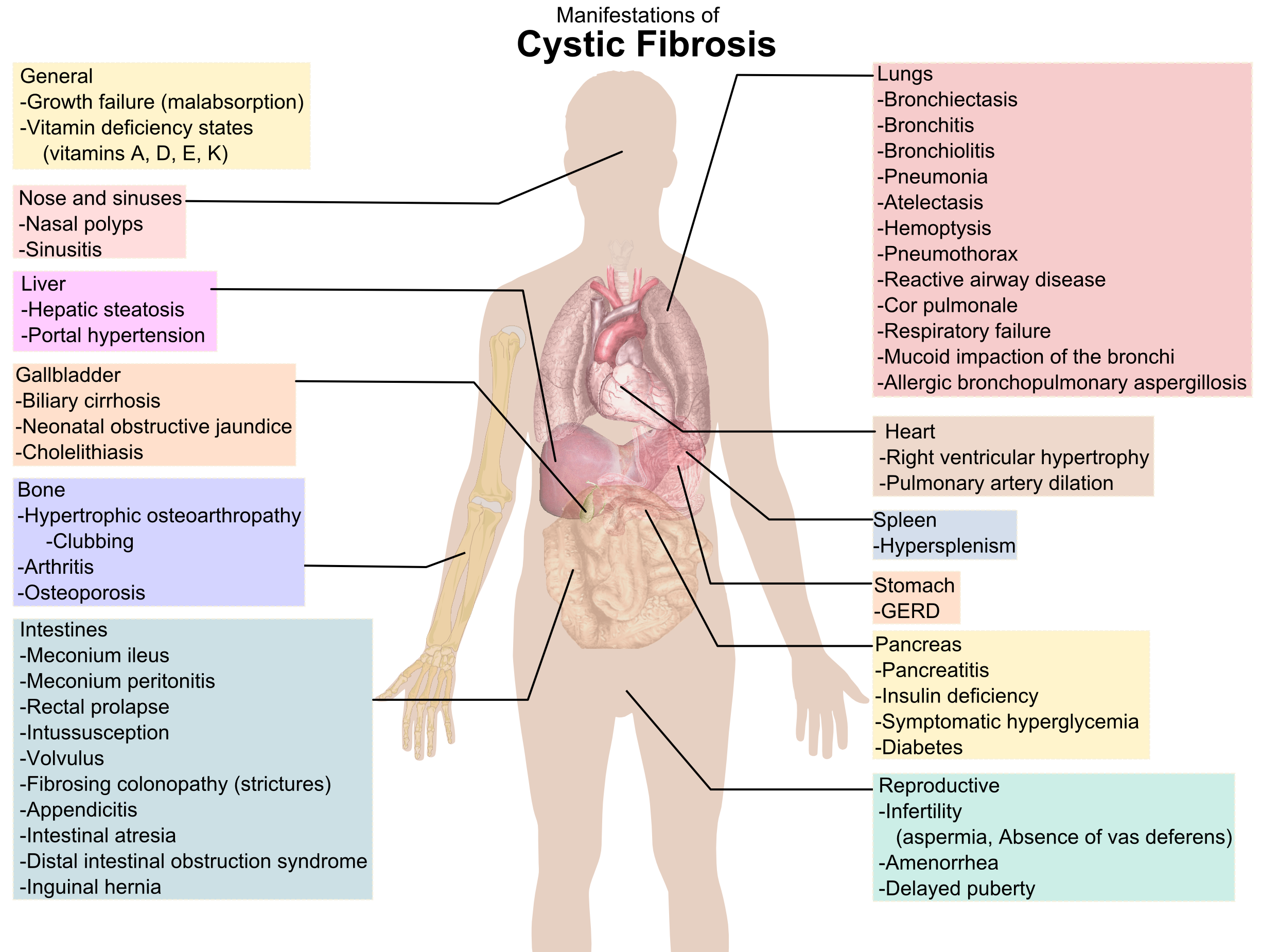 Lungs clipart atelectasis. Cystic fibrosis research what