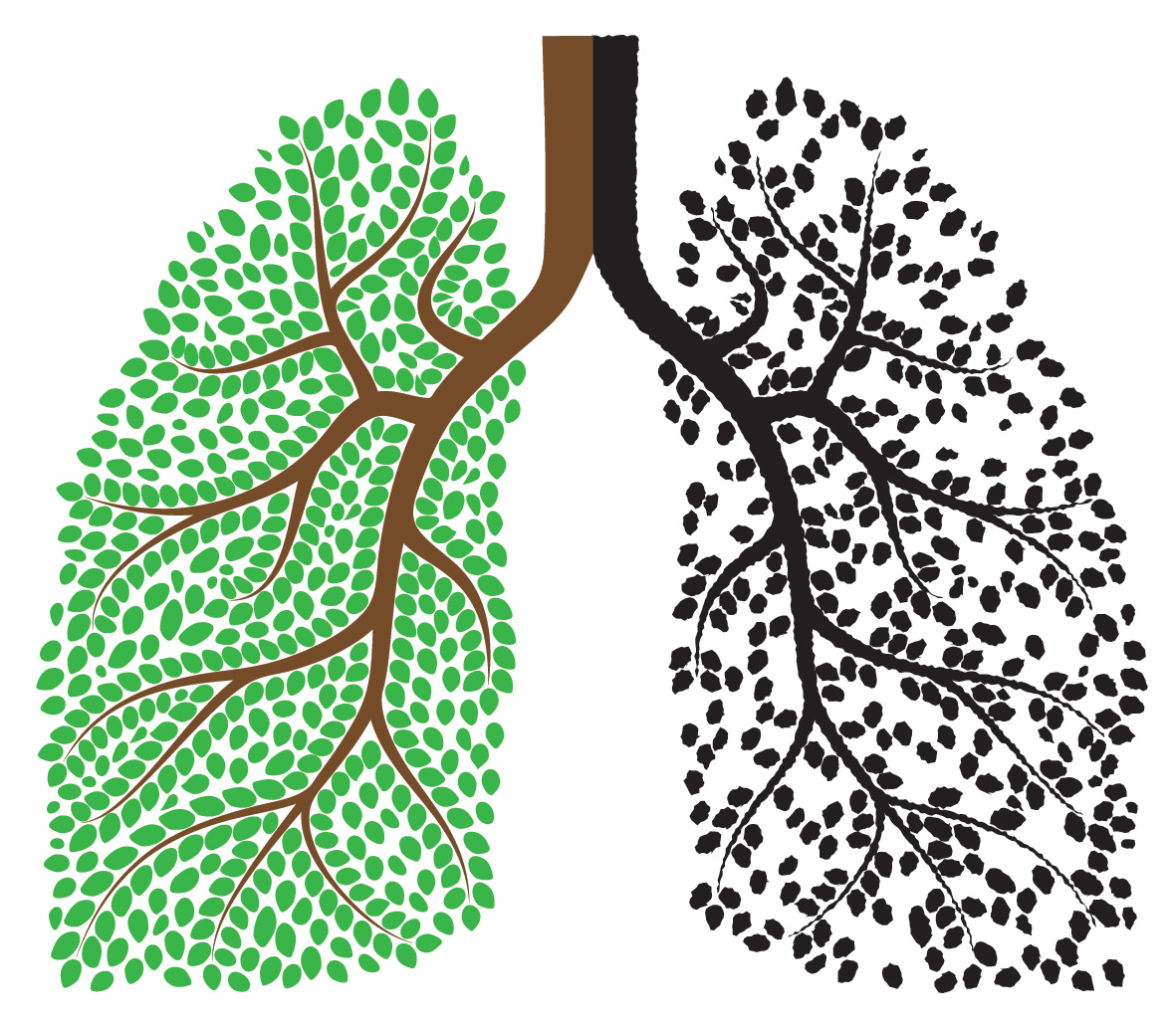 Lungs clipart bad lung. Does smoking pot cause