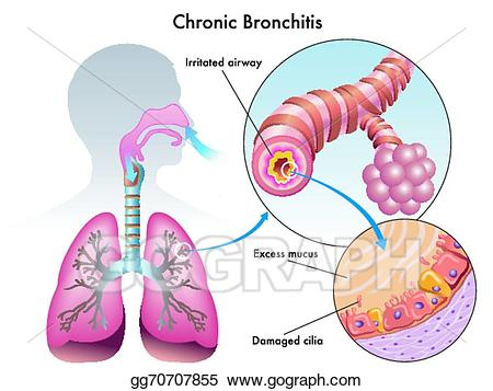 Vector art drawing gg. Lungs clipart chronic bronchitis