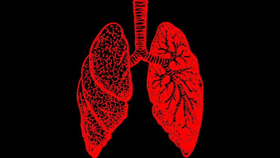 Developing new antibiotics to. Lungs clipart chronic bronchitis