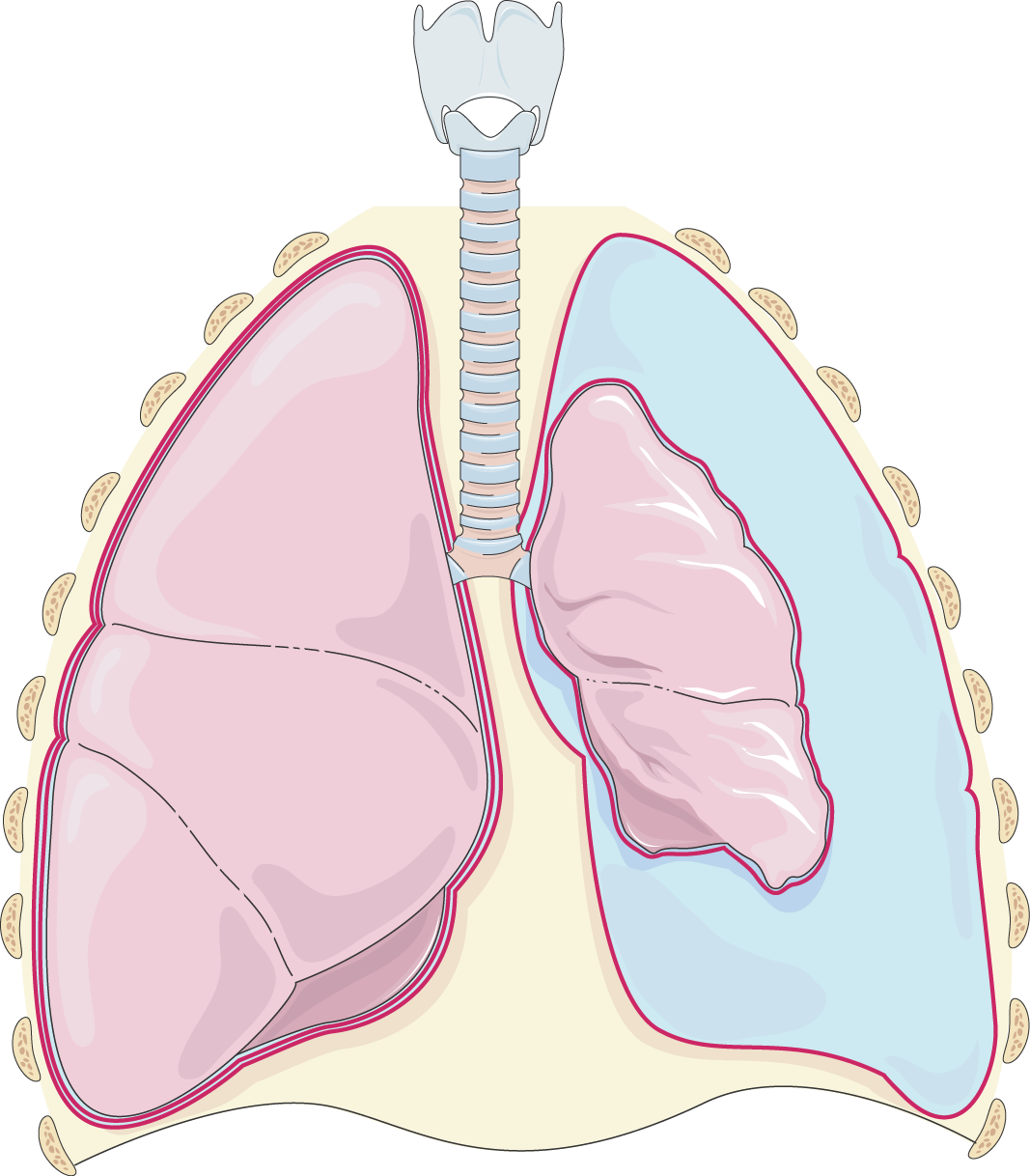 Lungs clipart chronic bronchitis. Archives servier medical art