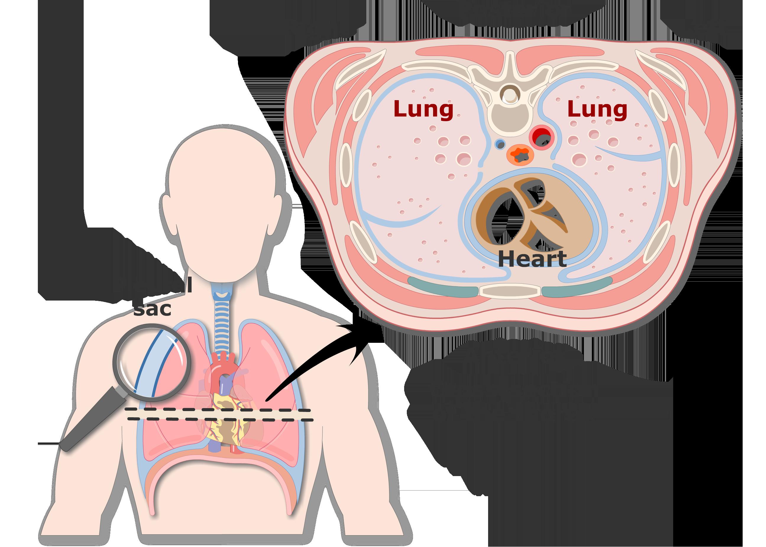 Lungs clipart human lung. Pleura or pleurae and