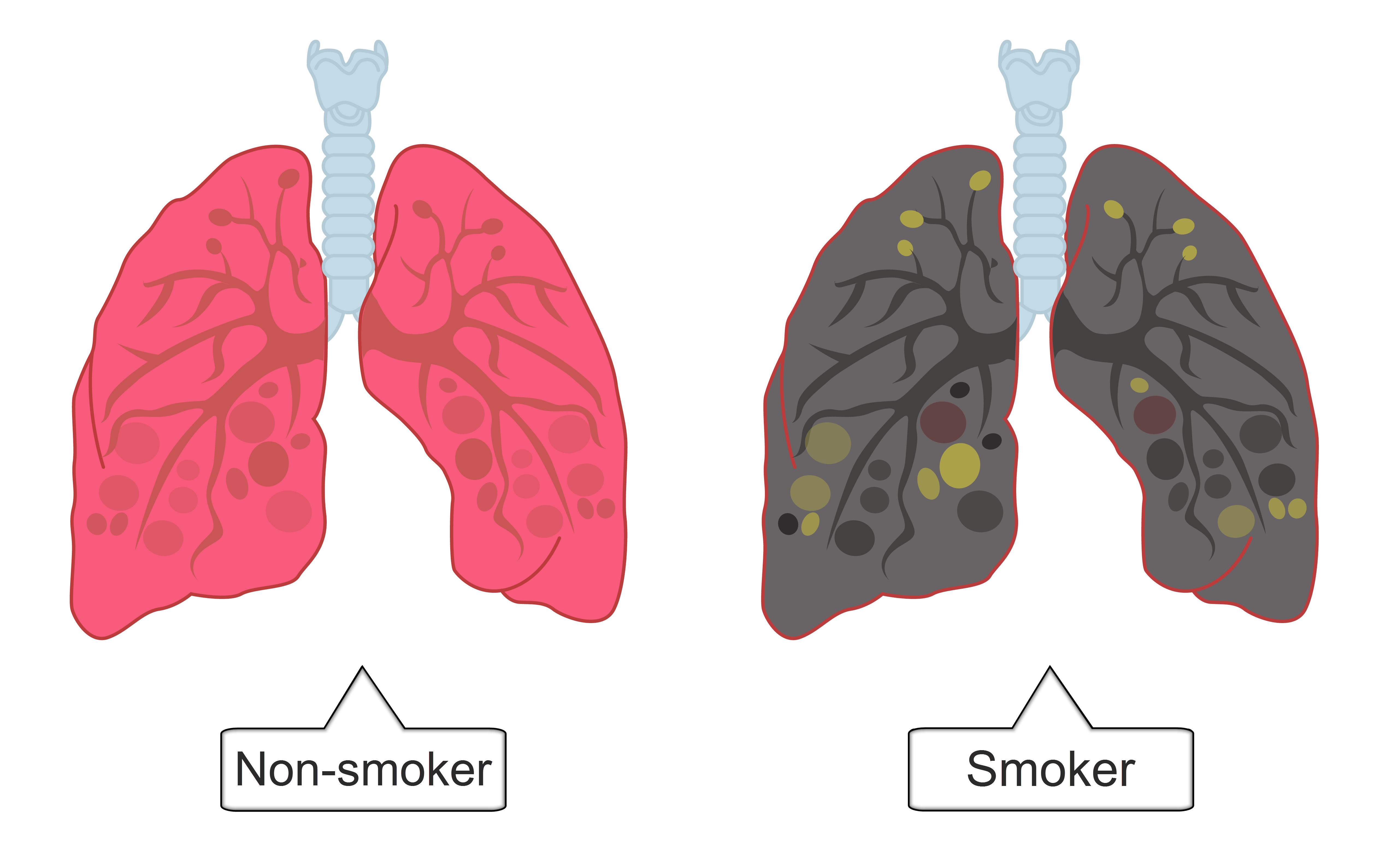 Lungs clipart lung smoker. Smoking and health worksheet