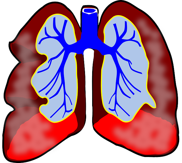 lungs clipart lung transplant