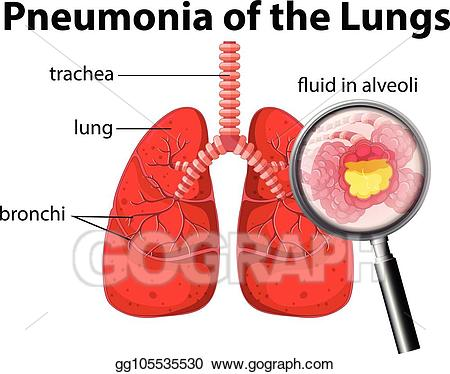 Eps vector of the. Lungs clipart pneumonia