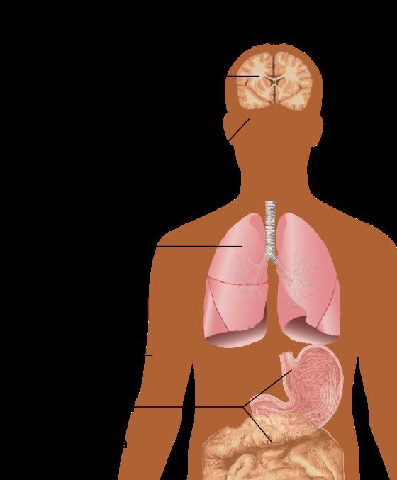Hiv aids wikiwand main. Lungs clipart pneumonia