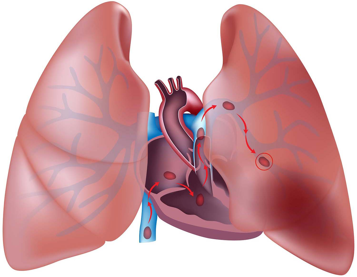Lungs clipart pulmonary embolism. Nuvaring increased risks causes