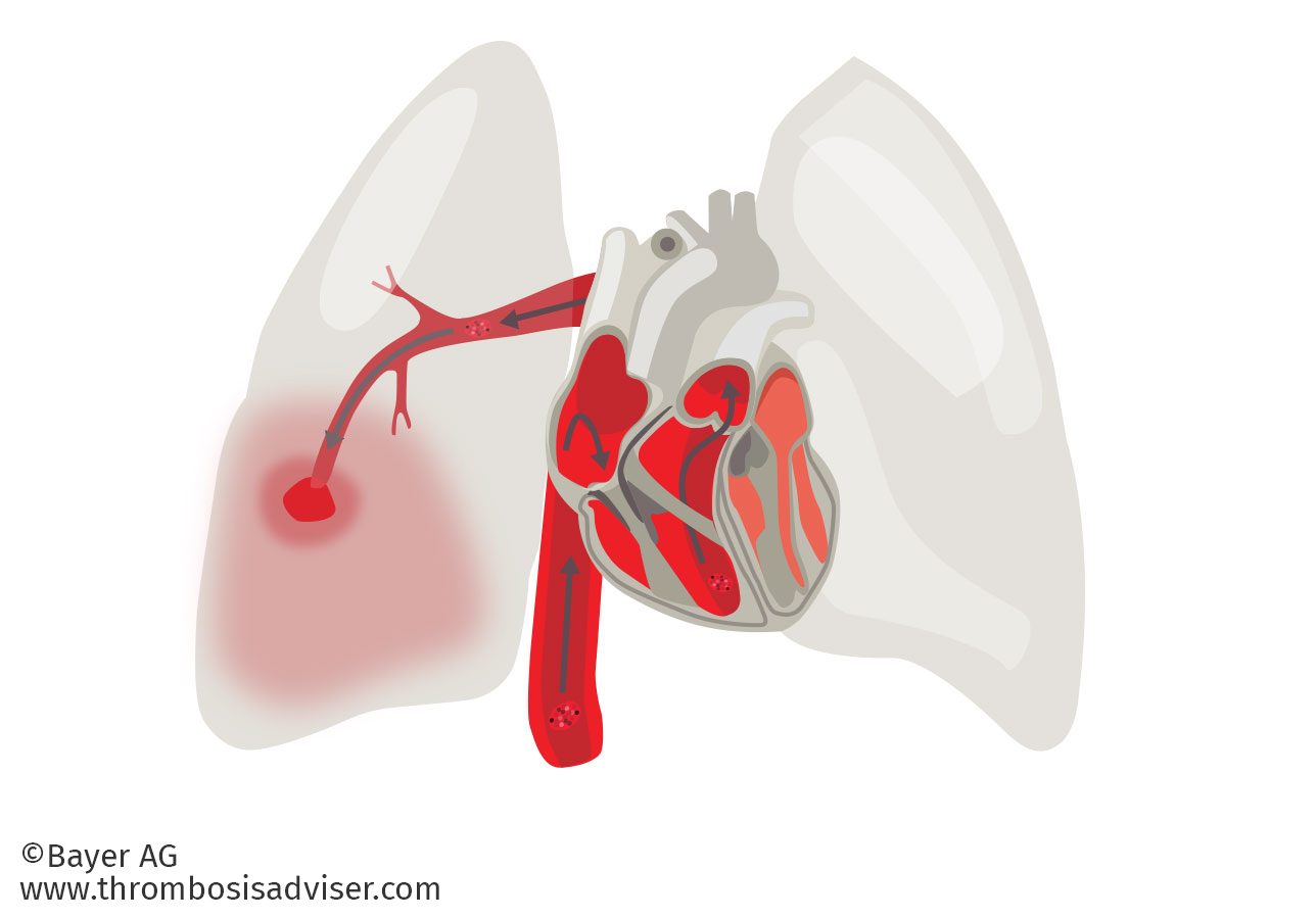 Image library about venous. Lungs clipart pulmonary embolism