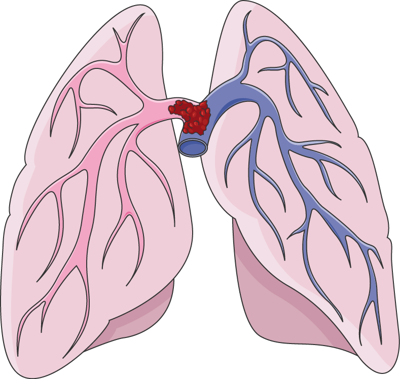 Lungs clipart pulmonary embolism. Servier medical art free