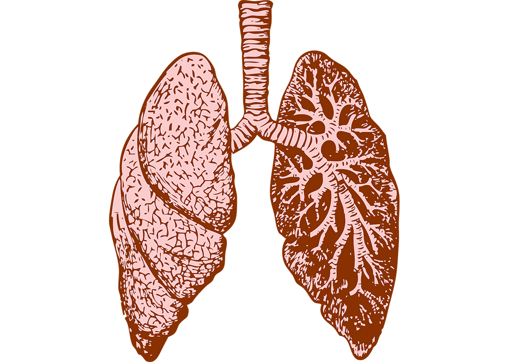 Lungs clipart pulmonary embolism. What is a or