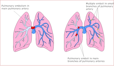 Lungs clipart pulmonary embolism. Misdiagnosed a case study