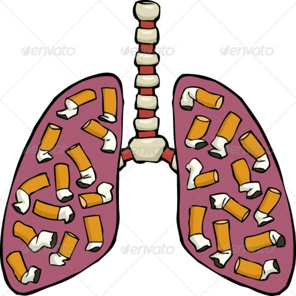 Lung cartoon free image. Lungs clipart sick